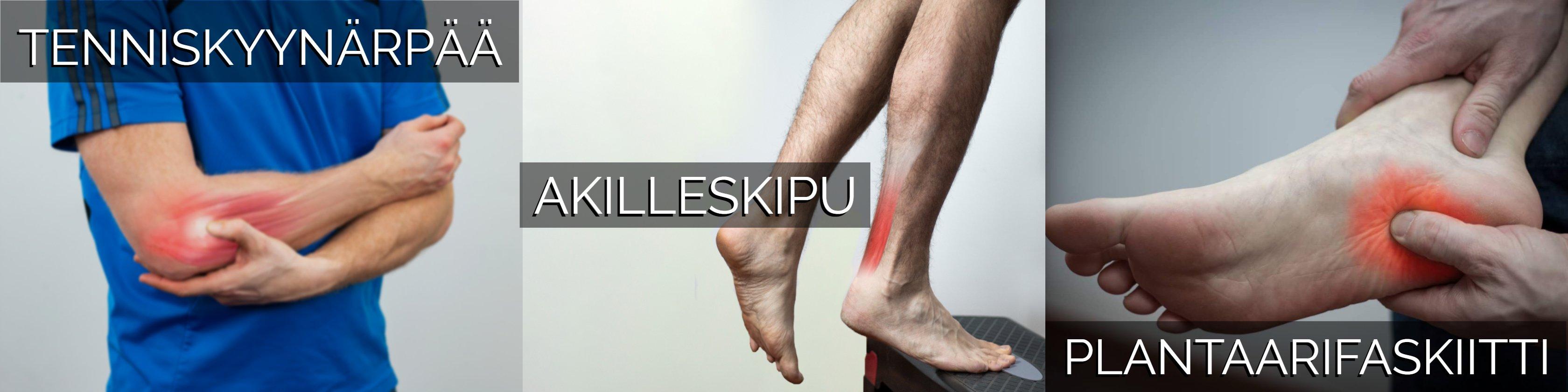 Tenniskyynärpää, akilleskipu, akillesjännekipu, akillesjänteen tendinopatia, plantaarifaskiitti, kantapääkipu, luupiikki, jalkapohjan kipu